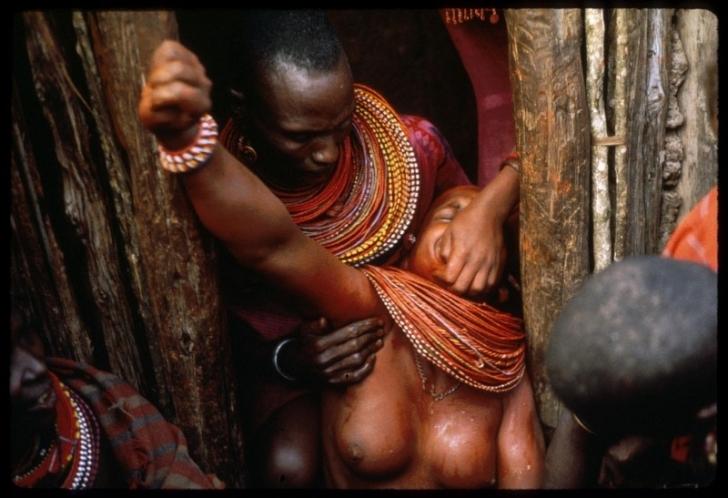 Afrika'da Bitmeyen Vahşet: Kadın Sünneti [+18]
